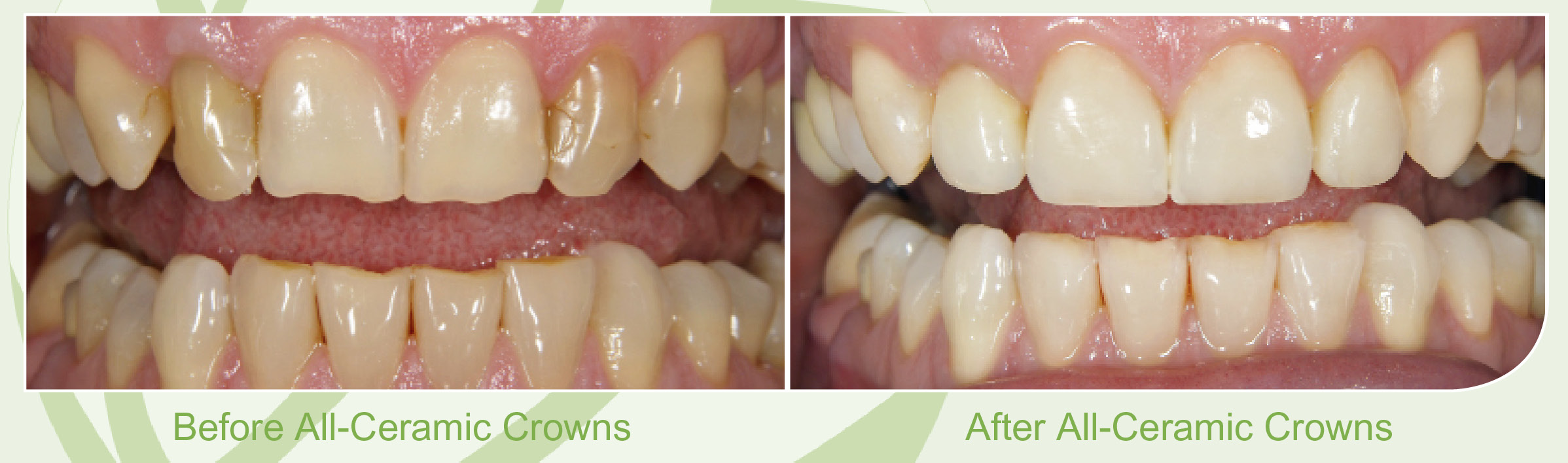 All Ceramic Crowns Skegness