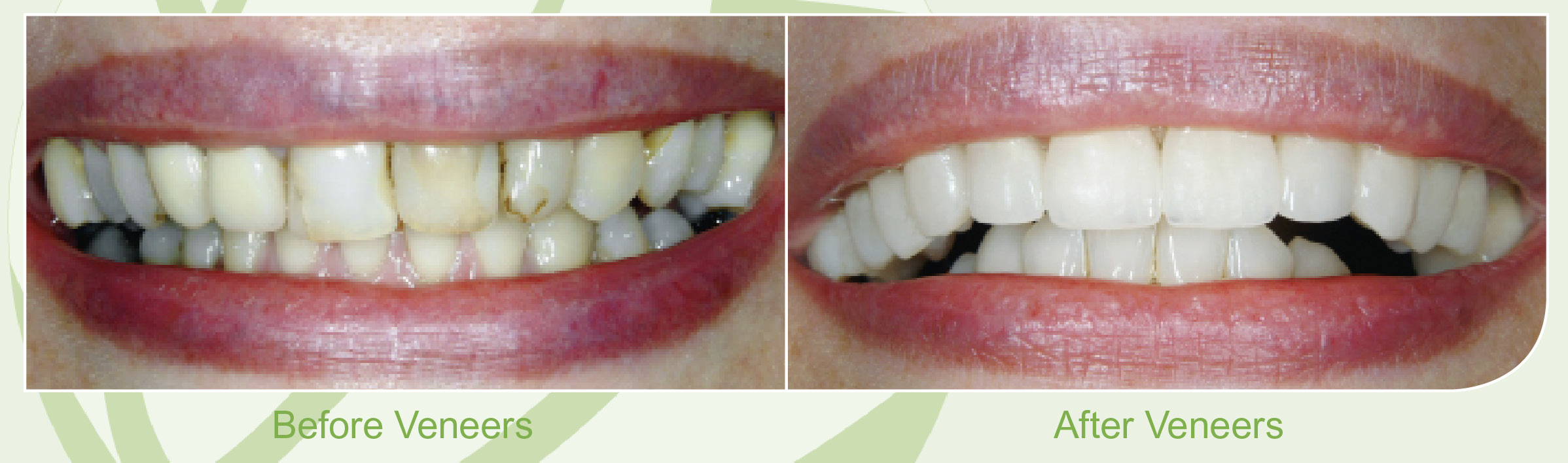 Dental Veneers Skegness